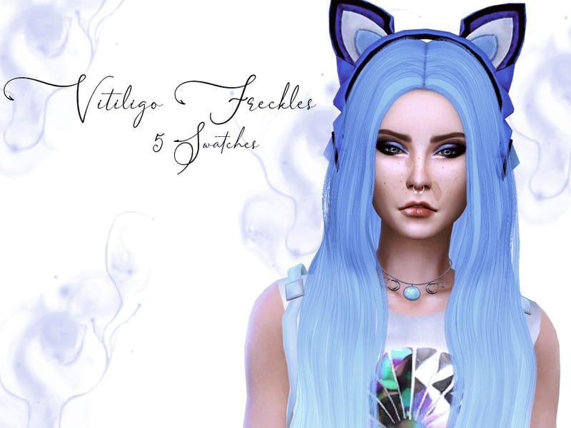 Vitiligo Freckles Sims 4 Mod Download Free
